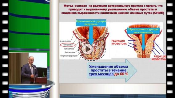 Лечение аденомы простаты по методу курбатова